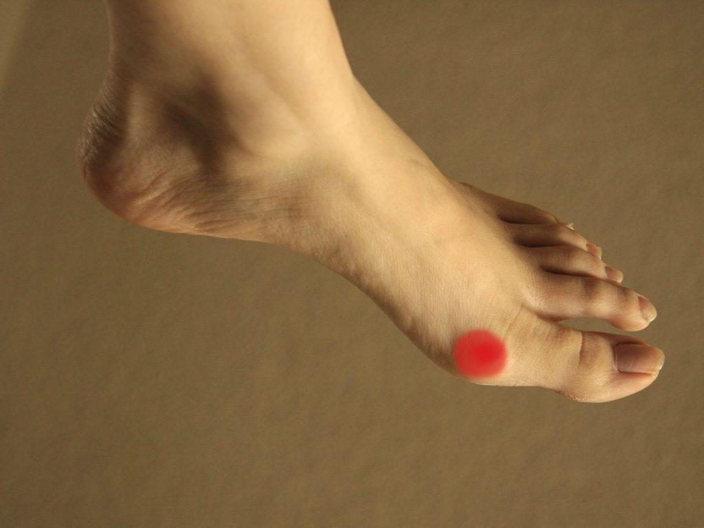 Co to jest stopa moczanowa?