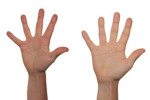 Co warto wiedzieć o artretyzmie